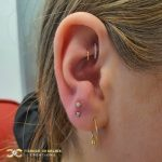 Fully Healed Double Rook with Hoops